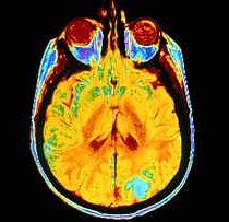 Imaging of a brain tumor